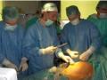 Pierwsza fetoskopowa laseroterapia w Warszawie