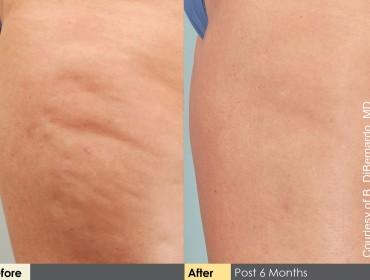 Efekt działania Cellulaze po 6 miesiącach