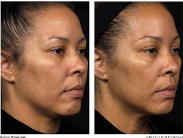 Efekty działania Thermage - twarz po 4 miesiącach fot. OPTOPOL Handlowy