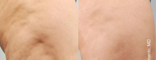 Redukcja cellulitu - efekt po 6 miesiącach