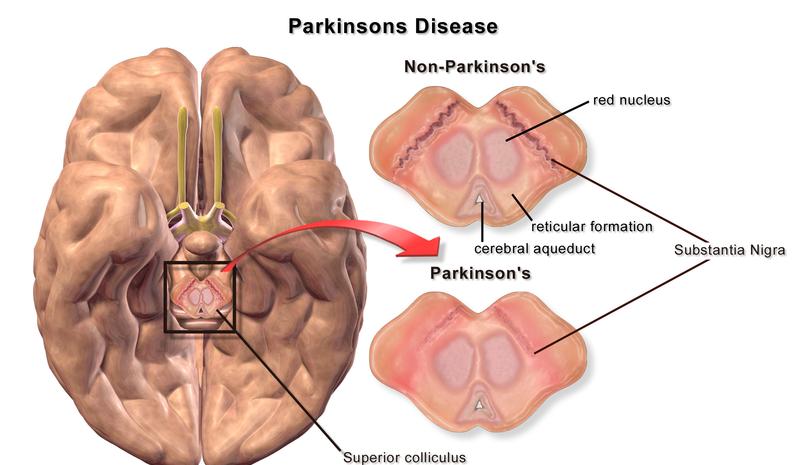 800px-Blausen_0704_ParkinsonsDisease